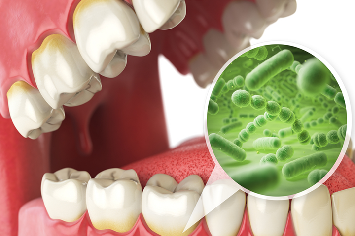 Common Reasons Why You Should Visit Your Dentist